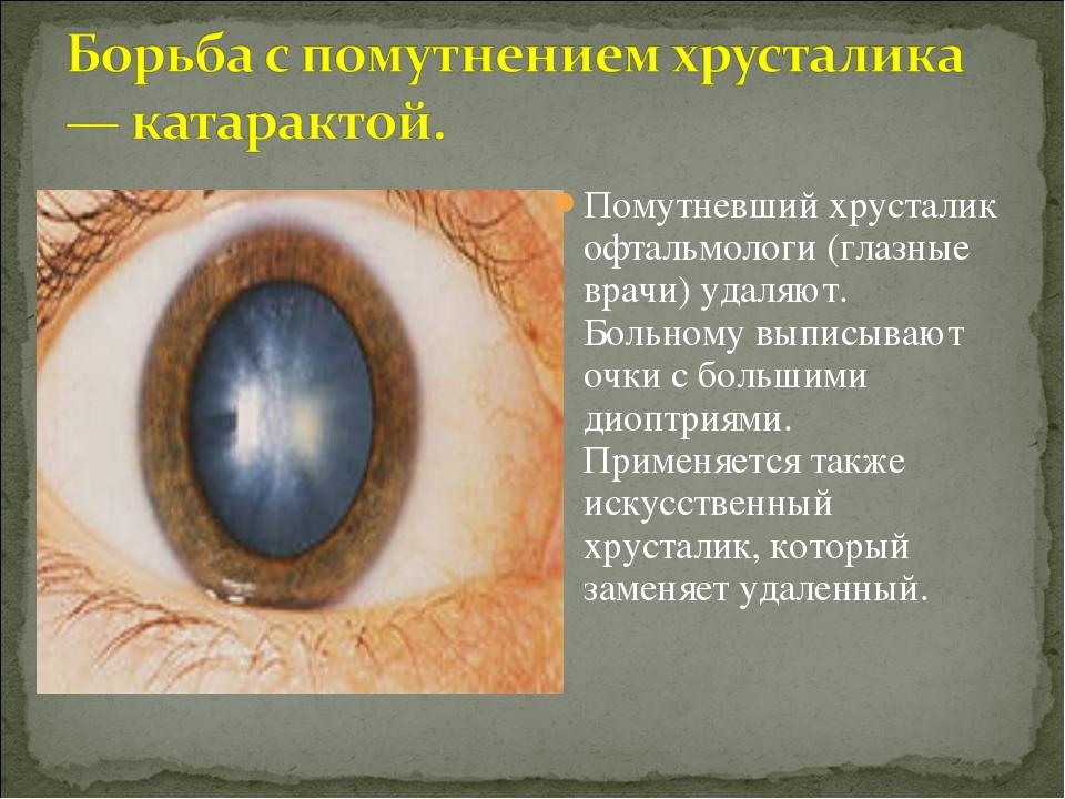 Помутневший хрусталик офтальмологи (глазные врачи) удаляют. Больному выписыва...