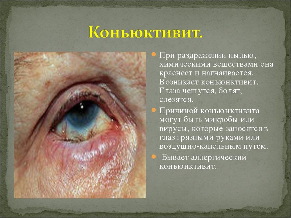 При раздражении пылью, химическими веществами она краснеет и нагнаивается. Во...