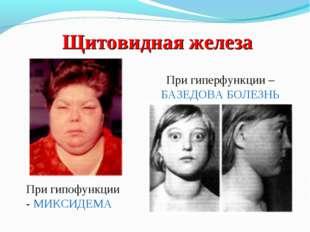 Щитовидная железа При гиперфункции – БАЗЕДОВА БОЛЕЗНЬ При гипофункции - МИКСИ