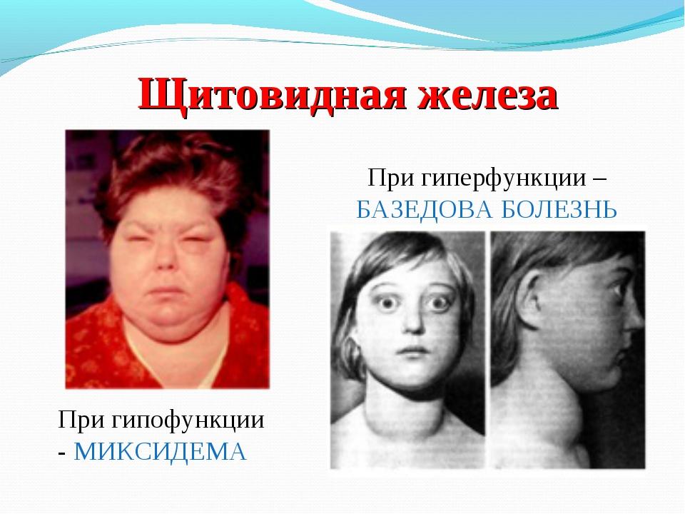 Щитовидная железа При гиперфункции – БАЗЕДОВА БОЛЕЗНЬ При гипофункции - МИКСИ...