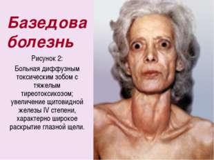 Базедова болезнь Рисунок 2: Больная диффузным токсическим зобом с тяжелым тир