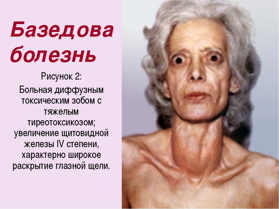 Базедова болезнь Рисунок 2: Больная диффузным токсическим зобом с тяжелым тир...