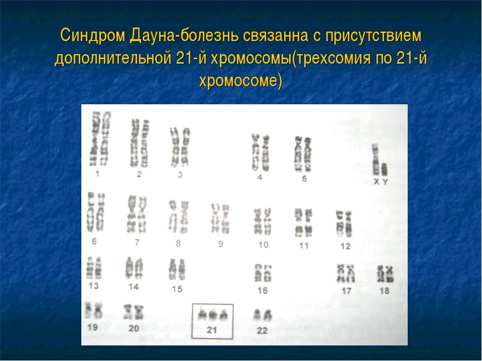 Синдром Дауна-болезнь связанна с присутствием дополнительной 21-й хромосомы(т...