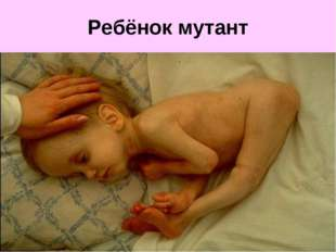Ребёнок мутант