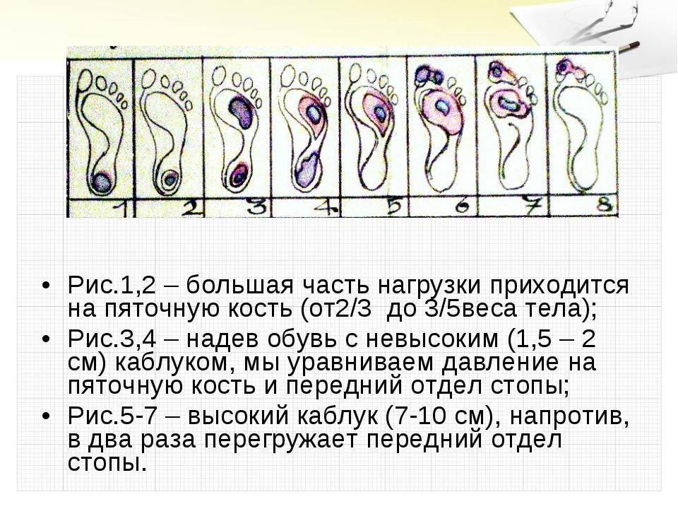 Рис.1,2 – большая часть нагрузки приходится на пяточную кость (от2/3 до 3/5ве...