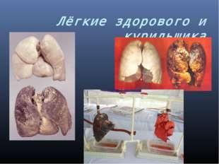 Лёгкие здорового и курильщика