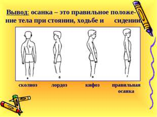 Вывод: осанка – это правильное положе-ние тела при стоянии, ходьбе и сидении