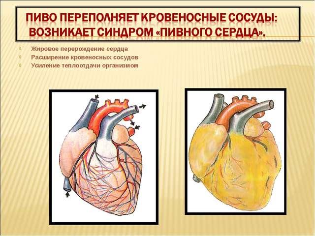 Жировое перерождение сердца Расширение кровеносных сосудов Усиление теплоотда...