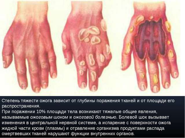 Степень тяжести ожога зависит от глубины поражения тканей и от площади его ра...