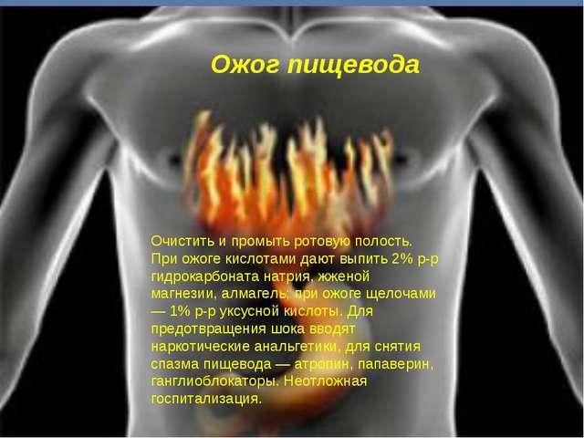 Ожог пищевода Очистить и промыть ротовую полость. При ожоге кислотами дают вы...