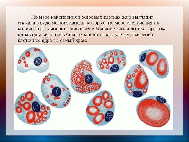 По мере накопления в жировых клетках жир выглядит сначала в виде мелких капе...