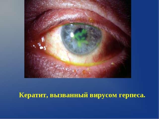 Кератит, вызванный вирусом герпеса.