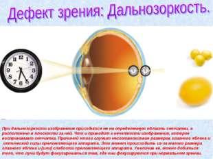 При дальнозоркости изображение приходится не на определенную область сетчатки