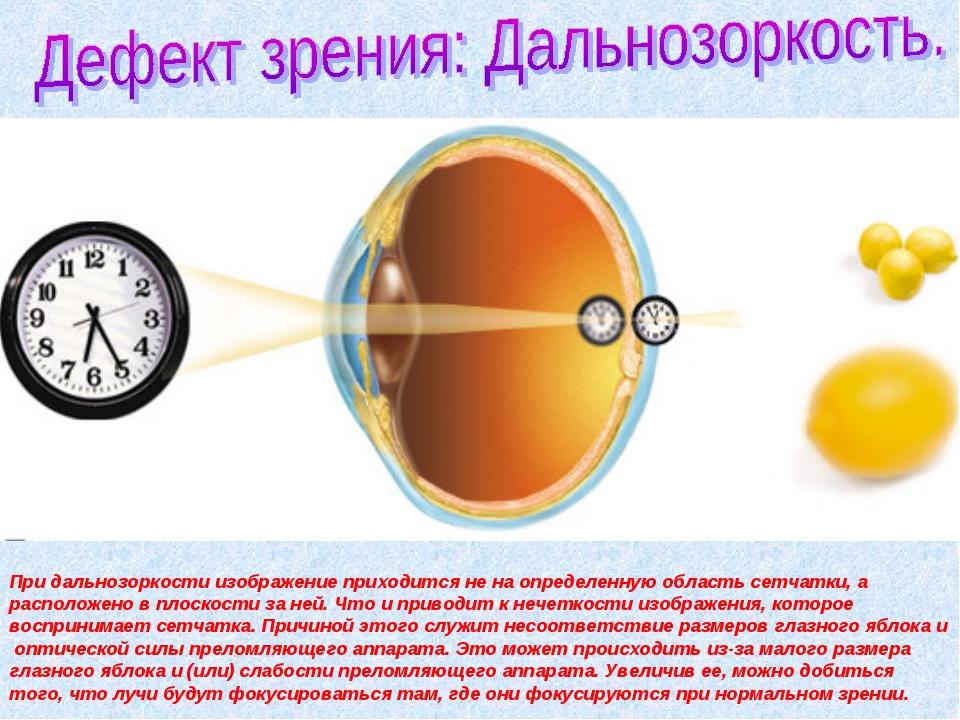 При дальнозоркости изображение приходится не на определенную область сетчатки...
