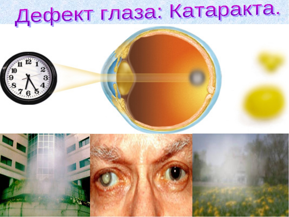 Катаракта — заболевание, при котором хрусталик глаза теряет прозрачность. Пом...