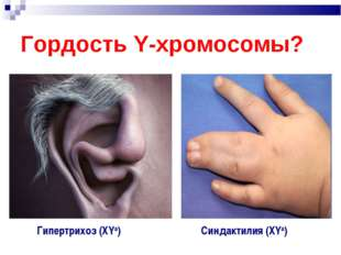 Гордость Y-хромосомы? Гипертрихоз (ХYa) Синдактилия (ХYa)