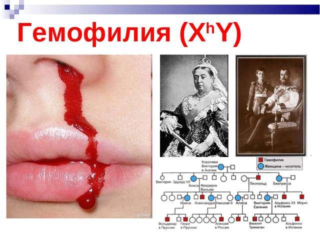 Гемофилия (ХhY)