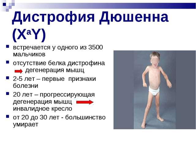 Дистрофия Дюшенна (XaY) встречается у одного из 3500 мальчиков отсутствие бел...