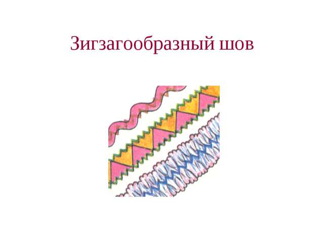 Зигзагообразный шов