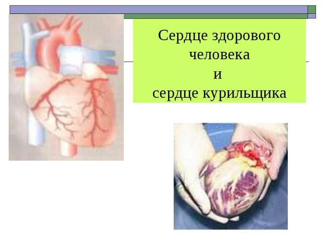 Сердце здорового человека и сердце курильщика