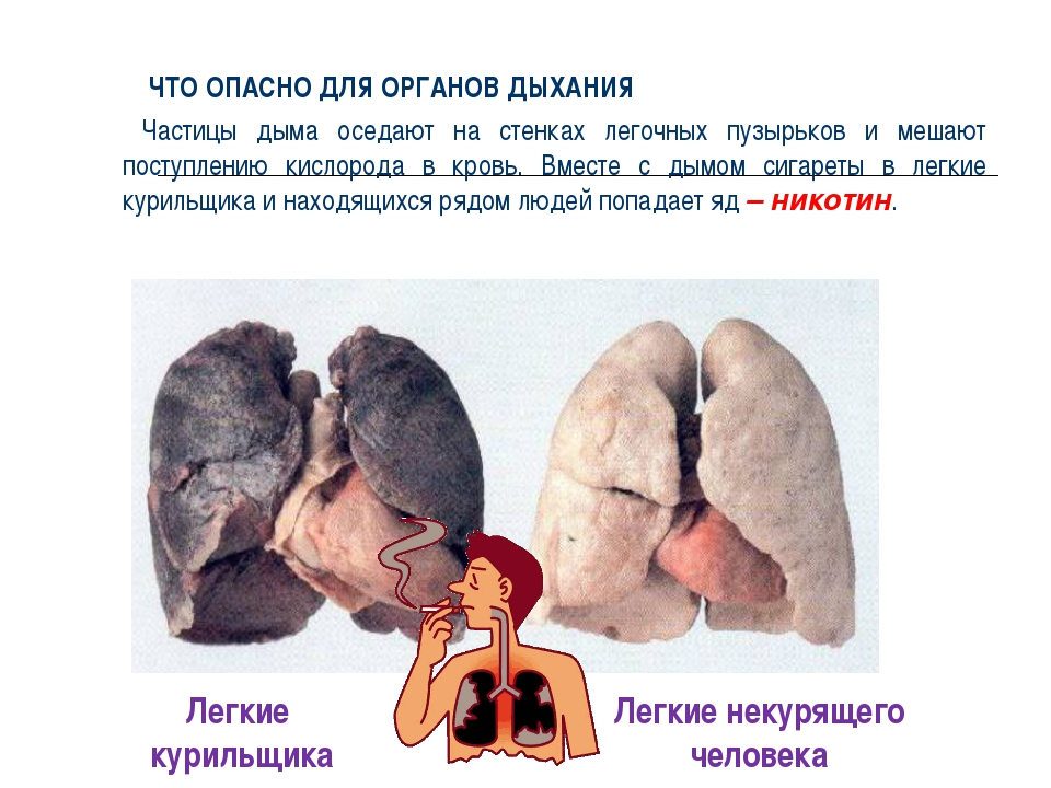 Что опасно для органов дыхания ЧТО ОПАСНО ДЛЯ ОРГАНОВ ДЫХАНИЯ Частицы дыма ос...