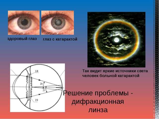здоровый глаз глаз с катарактой Так видит яркие источники света человек больн...