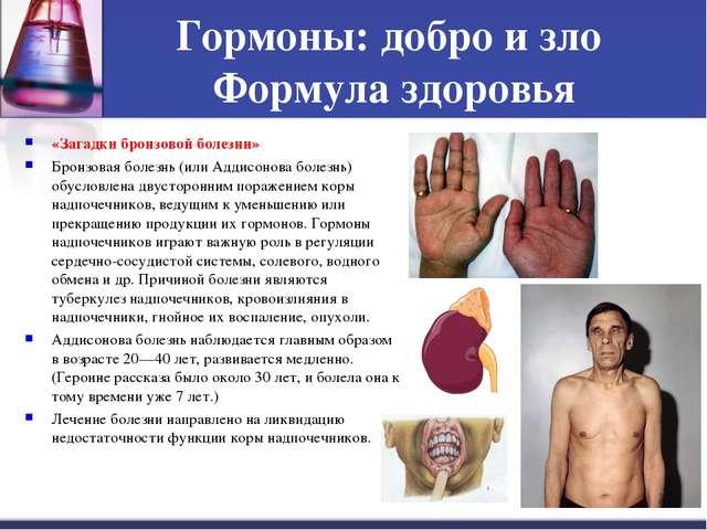 Гормоны: добро и зло Формула здоровья «Загадки бронзовой болезни» Бронзовая б...