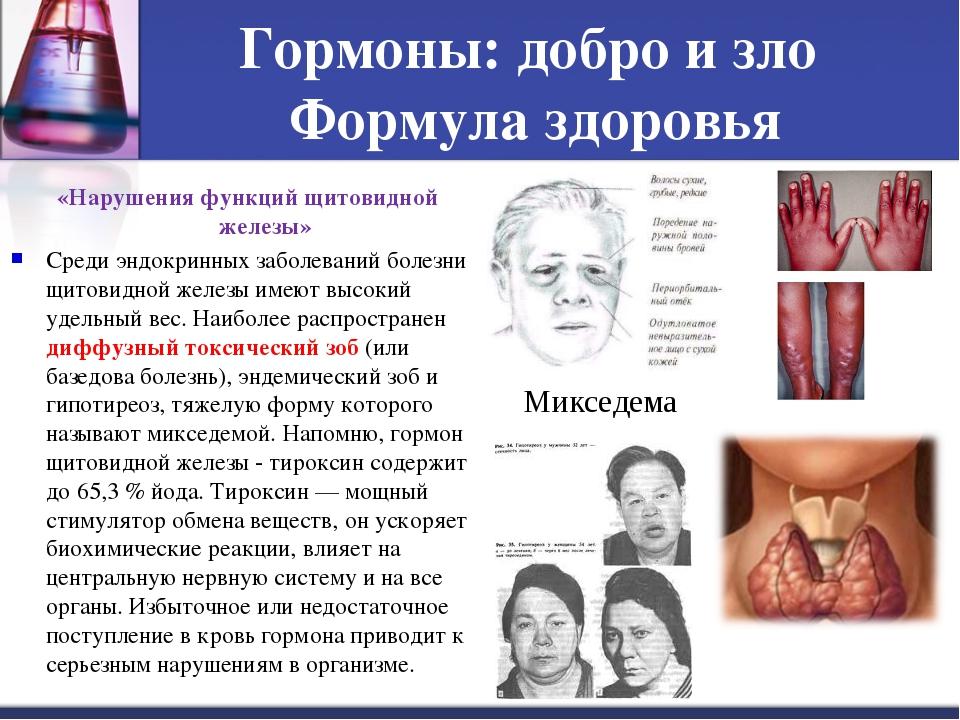 Гормоны: добро и зло Формула здоровья «Нарушения функций щитовидной железы» С...