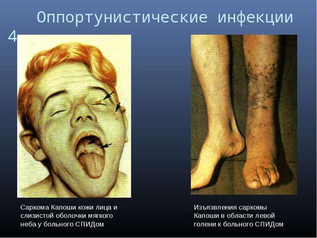 Оппортунистические инфекции 4 Саркома Капоши кожи лица и слизистой оболочки...