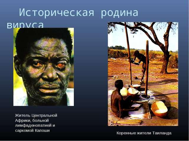 Историческая родина вируса Житель Центральной Африки, больной лимфаденопатие...