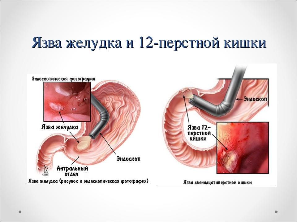 Язва желудка и 12-перстной кишки