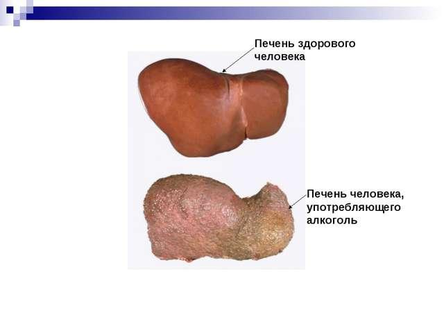 Печень здорового человека Печень человека, употребляющего алкоголь
