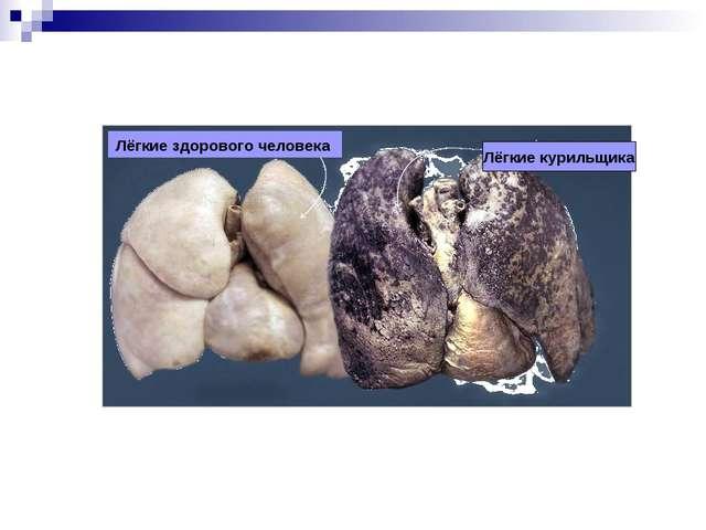 Лёгкие курильщика Лёгкие здорового человека
