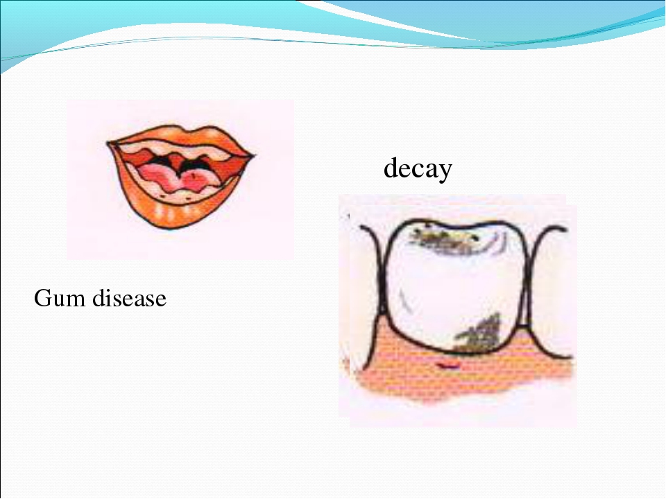 Gum disease decay