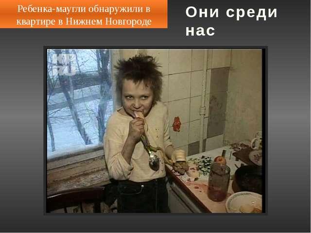 В Кемерово мальчика-маугли вернули домой 9-летний Эдик Шешмин практически не...
