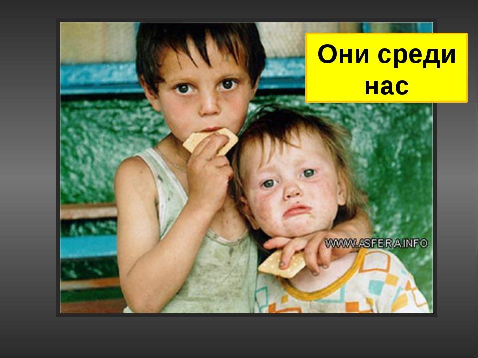 Они среди нас В Чите нашли девочку-маугли: в свои пять лет ребенок умеет толь...