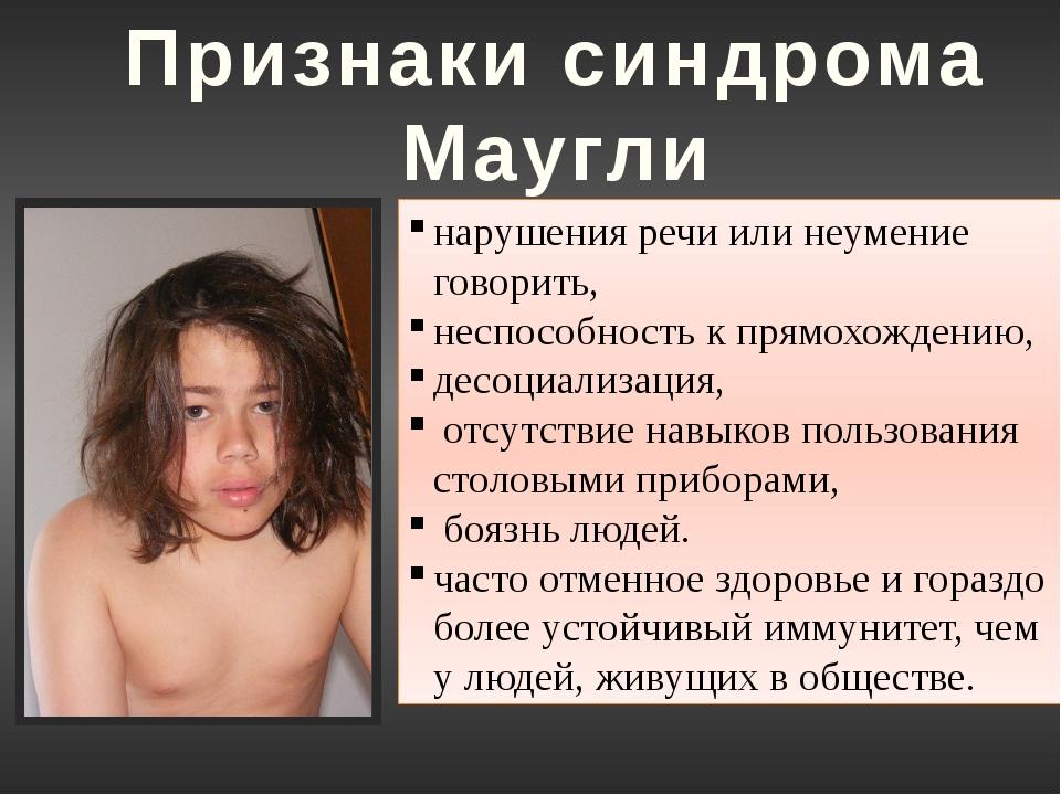 Синдром Маугли Те, кто жил в обществе животных первые 5-6 лет жизни, практиче...