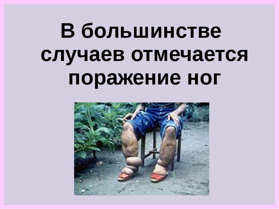 В большинстве случаев отмечается поражение ног