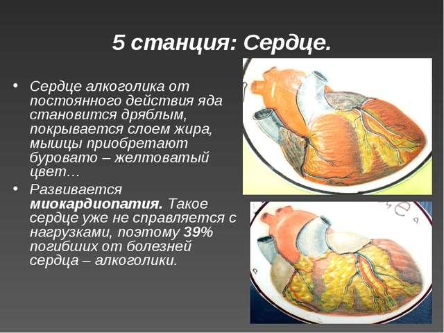 5 станция: Сердце. Сердце алкоголика от постоянного действия яда становится д...