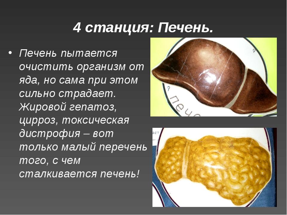4 станция: Печень. Печень пытается очистить организм от яда, но сама при этом...
