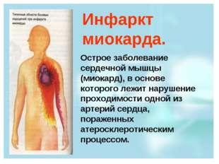 Инфаркт миокарда. Острое заболевание сердечной мышцы (миокард), в основе кото