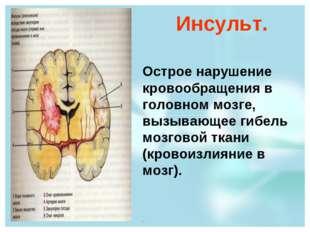 Инсульт. Острое нарушение кровообращения в головном мозге, вызывающее гибель