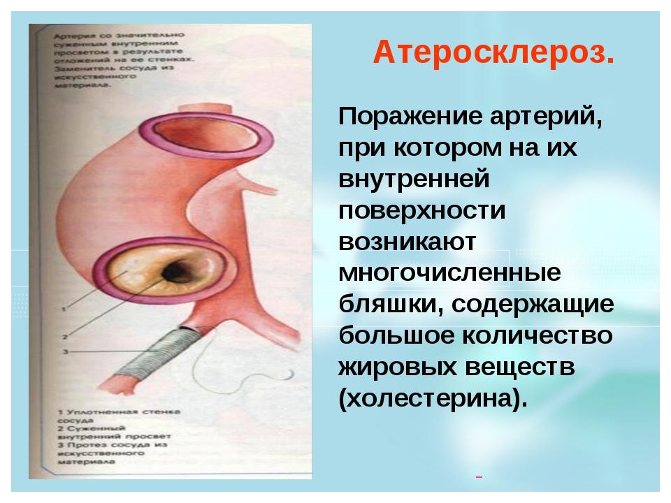 Атеросклероз. Поражение артерий, при котором на их внутренней поверхности воз...