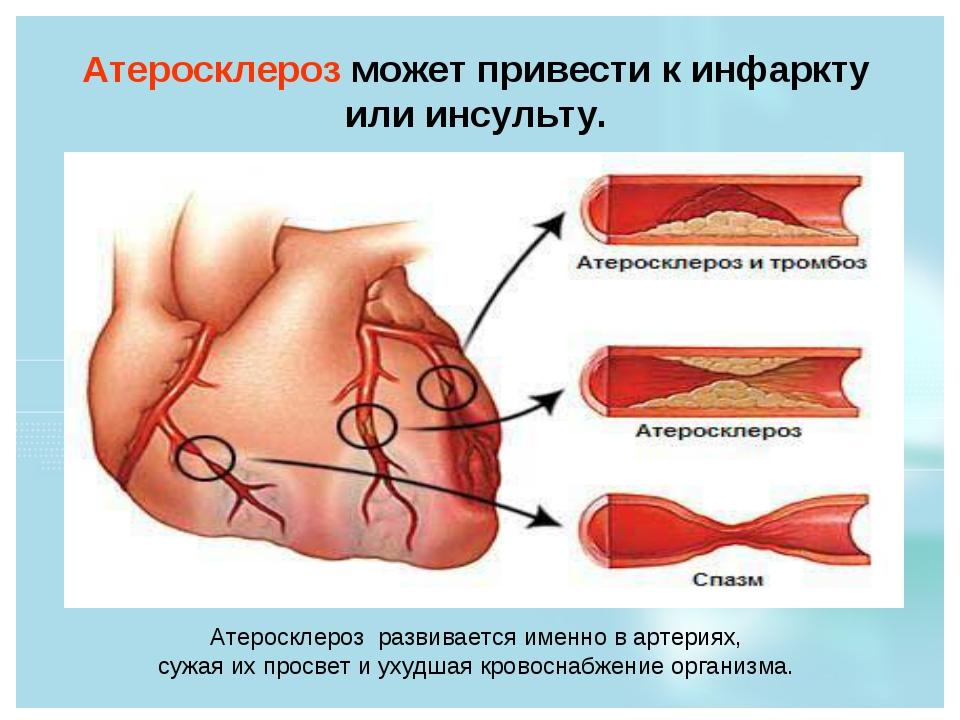Атеросклероз может привести к инфаркту или инсульту. Атеросклероз развивается...