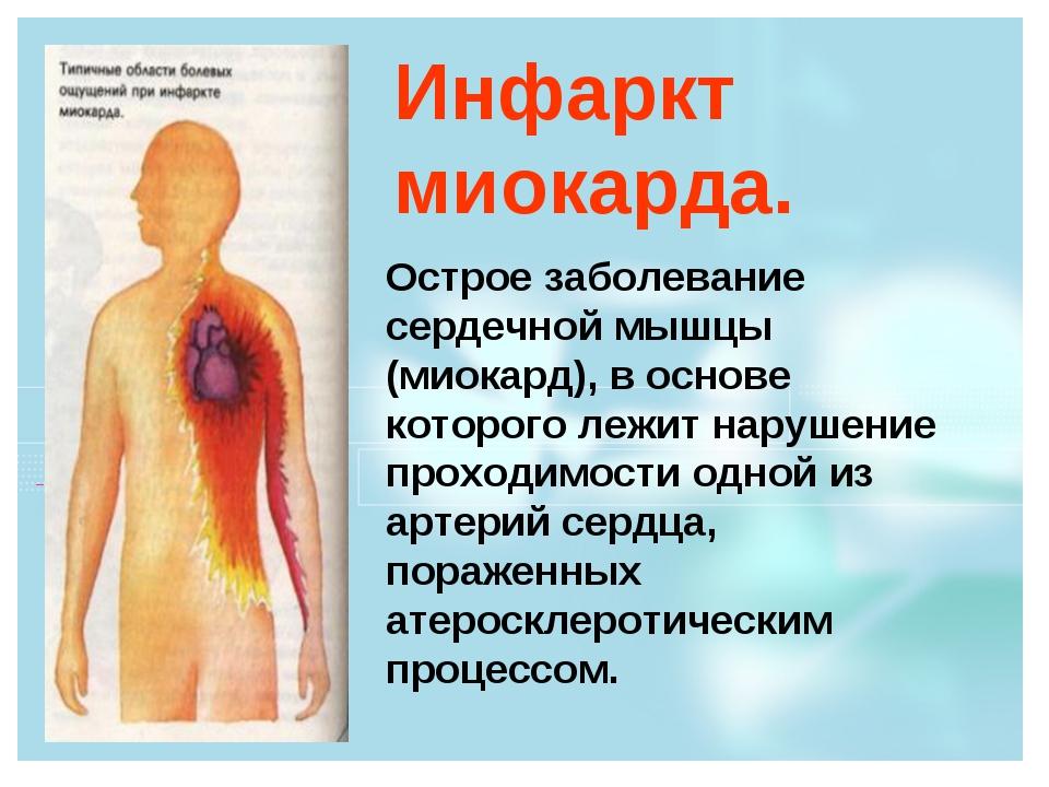 Инфаркт миокарда. Острое заболевание сердечной мышцы (миокард), в основе кото...