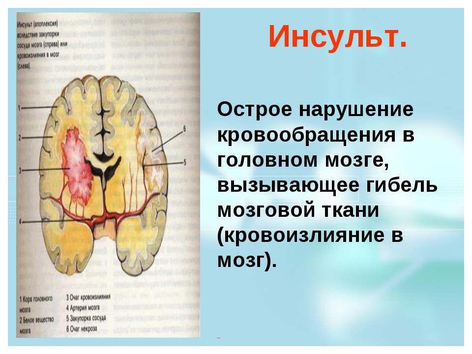 Инсульт. Острое нарушение кровообращения в головном мозге, вызывающее гибель...