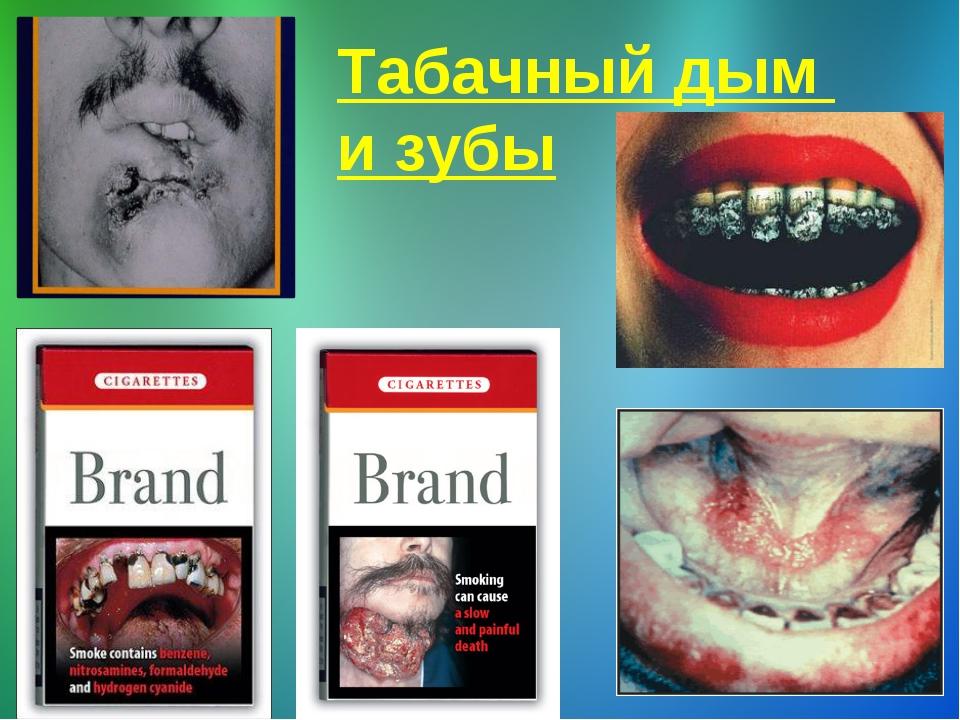 Табачный дым и зубы
