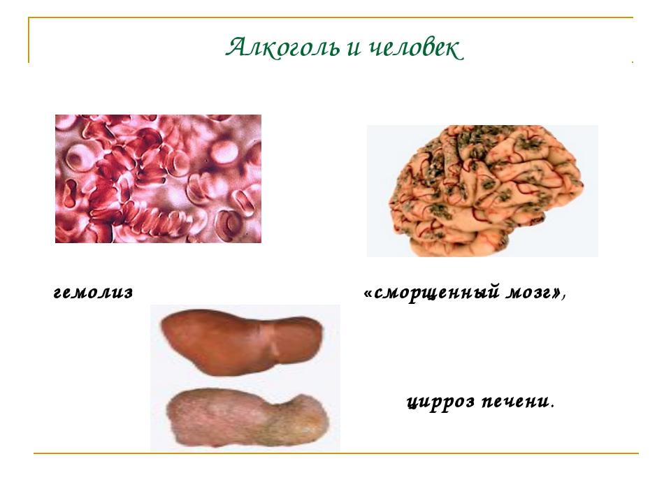 Алкоголь и человек гемолиз «сморщенный мозг», цирроз печени.