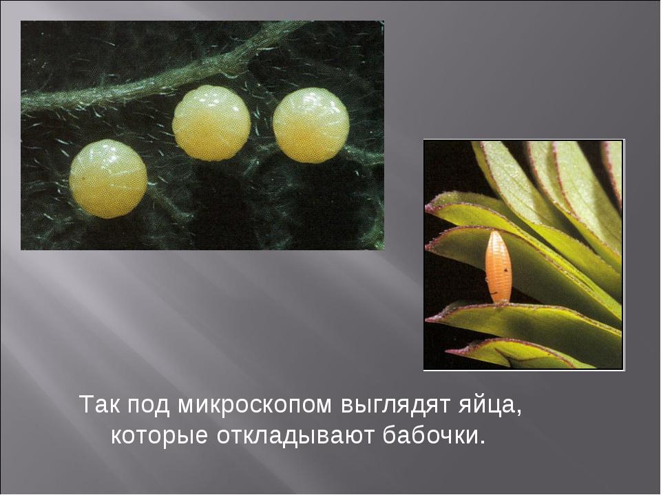 Так под микроскопом выглядят яйца, которые откладывают бабочки.