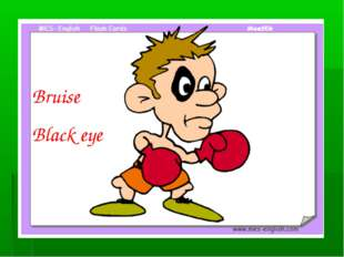 Bruise Black eye Black eye